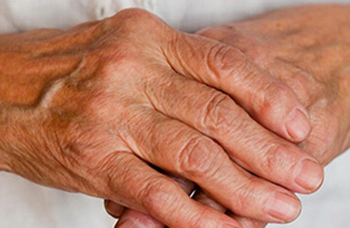 what-is-arthritis